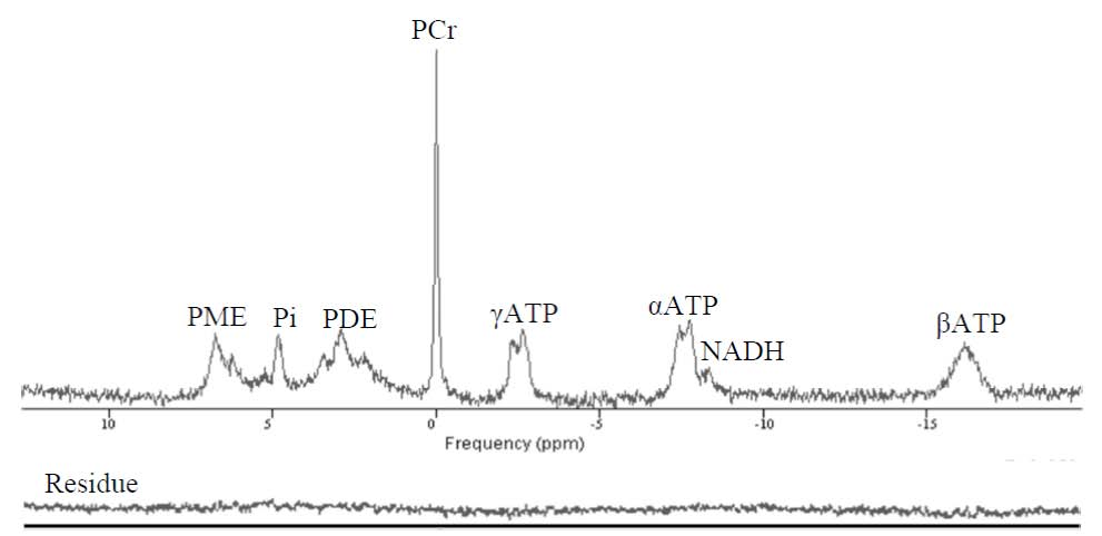 Figure 2: Representative 31P spectrum obtained at 3T with well-defined high-energy phosphate metabolites from the visual cortex of a control subject.