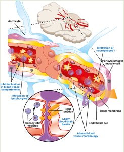 Figure: The main cerebrovascular compromise in HD patients and in an HD mouse model of the disease, comprised of mhtt expression in cell types associated with blood vessels, the alteration of blood vessel morphology and an increase in blood-brain barrier permeability