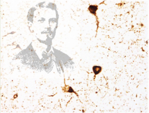 "Figure: (Background) Pathological tau aggregates in an HD brain (Foreground left) George Huntington, MD (1850−1916), who first described the disease that now bears his name, in a report titled ""On chorea"" published in The Medical and Surgical Reporter of Philadelphia on April 13, 1872"