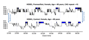 Figure: Representative sleep profiles of a premanifest participant and an age- and sex-matched control showing more awakenings and time spent awake during the sleep period with less REM sleep, and an overall more fragmented sleep profile in the premanifest participant.