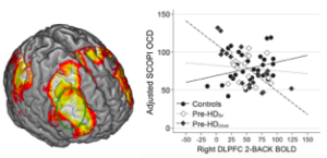 Figure: Association between fMRI activity in the right DLPF and SCOPI OCD scores in Pre-HD far from onset, close to onset, and healthy controls.