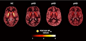 Figure. Axial summed [11C]IMA107 PET images co-registered and fused with 3-T MRI images for the striatum of a 33-year-old healthy male showing normal striatum [11C]IMA107 binding (BPND = 2.24) (left); a 35-year-old male premanifest HD gene carrier (CAGr: 40; DBS: 153; 90% probability to onset: 43 years) showing mild to moderate decreases in striatal [11C]IMA107 binding (BPND = 1.45) (middle-left); a 33-year-old female premanifest HD gene carrier (CAGr: 43; DBS: 247.5; 90% probability to onset: 25 years) showing moderate decreases in striatal [11C]IMA107 binding (BPND = 1.32) (middle-right); and a 52-year-old male early premanifest HD gene carrier (CAGr: 41; DBS: 282.2; 90% probability to onset: 21 years) showing severe decreases in striatal [11C]IMA107 binding (BPND = 0.57) (right). NB: Predicted onset was estimated using the validated variant of the survival analysis formula described by Langbehn et al.6 This formula can be transformed into a probability distribution for age of diagnosis and subsequently years from symptomatic onset that depends on both the subject's CAG expansion length and current age.7